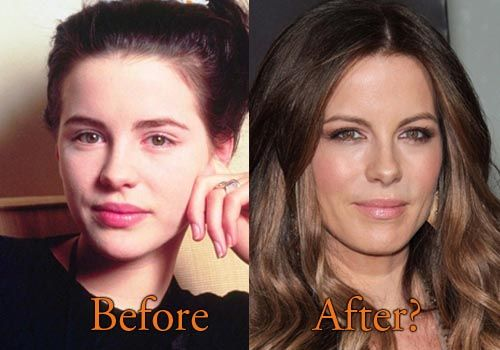 Kate Beckinsale Plastic Surgery Before and After Photos. #katebeckinsale #cosmeticsurgery #plasticsurgery #celebritysurgery #botox #nosejob
