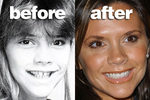 Celebrity Plastic Surgery Before & After | Before and ...