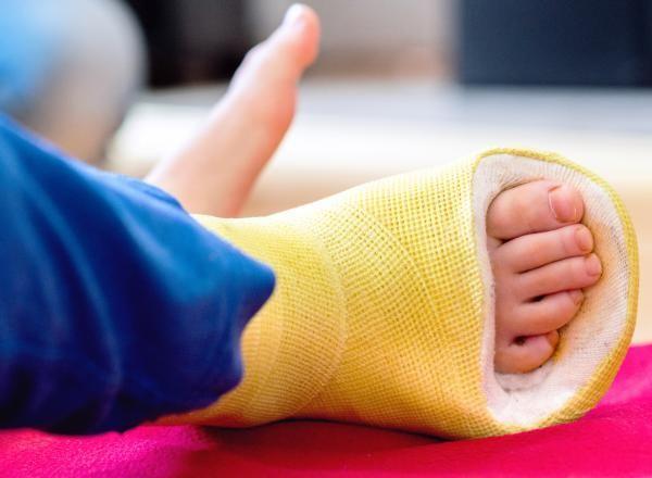 Toddlers fracture – Beinbruch bei Kindern Was tun, wenn sich ein zweijähriges Kind ein Bein bricht? Mama Julia hat Tipps, wie du ein Kind mit Gipsbein beschäftigen kannst.