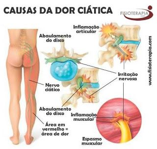 Clínica de Massagem Terapêutica, Acupuntura, Quiropraxia, Reflexologia em São José SC 48-3094-5746: Dores no nervo ciático (ciatalgia) - Massagista em...