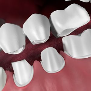 Dr. Hasken Implant Dentist in McHenry & CrystaL lake, IL Providing Dental Bridges to Replace Missing Teeth.