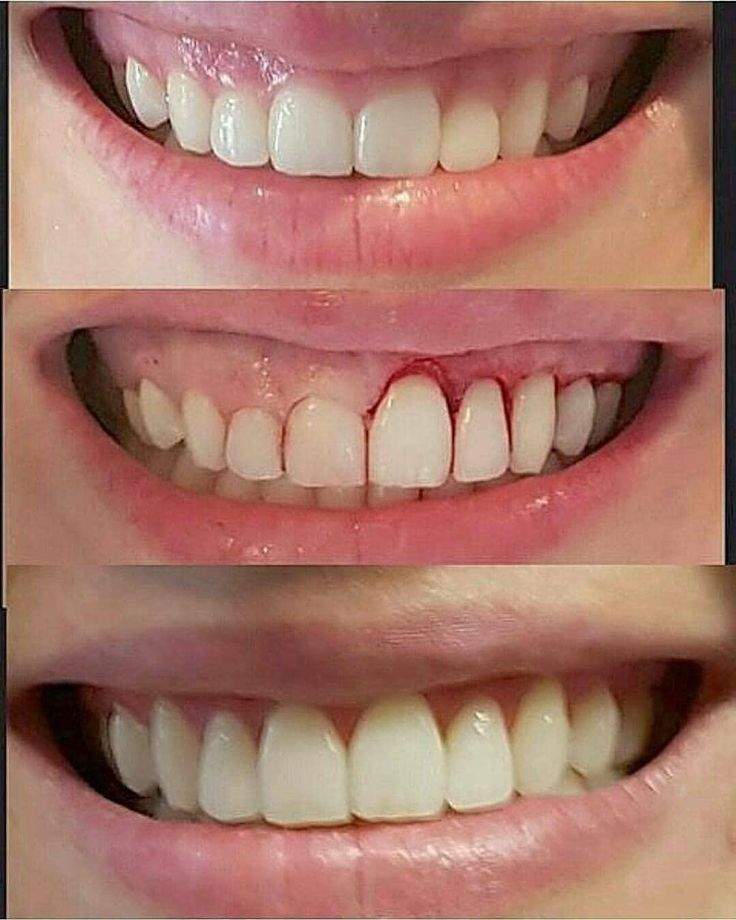 @viraldentist: Smile harmony after gingivoplasty Tag your friends @viraldentist _______________________________ Follow @viraldentist For more! _______________________________ #alldentfor#dentalstudent #teeth #dental #odontologia #dentistry #braces #dentalschool #dentalassistant #dentalhygienist #dentalhygieneschool #teethwhitening #cosmeticdentistry #cosmeticsurgery #toothfairy #implants #dentures #rootcanal #odonto #smile #whiteteeth #cavity #cavityfree via @drmateussimoes