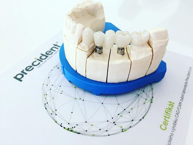 Alldente, Precident, Ceramic Crowns, Dental Implants.  #the #best #way#how #to #replace #tooth #dental#implant#dentist #design #smart #happyclient #feelingood #weekend #lab#naturalbeauty #artificial #crown#foto #art #surgery #blogger #czech #krasnyusmev Natural Beauty from BEAUT.E