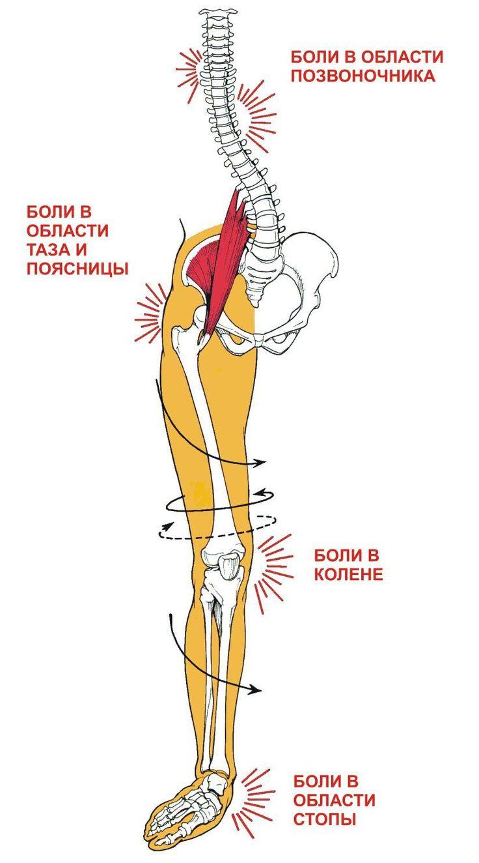 Неправильная работа стопы в профессиональном да и в любительском спорте может привести к таким патологиям, как сесамоидит, подошвенный фасциит, «пяточная шпора», тендинит и энтезит ахиллова сухожилия, периостопатии костей голени и стопы, повреждения мышц задней поверхности бедра, стресс-переломы костей стопы и голени, эрозия хряща надколенника («колено бегуна»), надрывы собственной связки надколенника («колено прыгуна»), перекос таза, грыжи дисков и хронические боли в пояснице