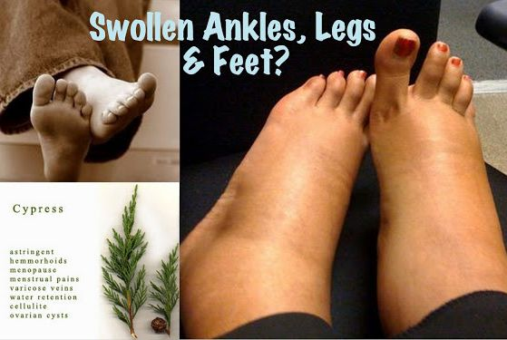 Essential Oils For Swollen Ankles, Legs and Feet   https://www.youngliving.com/signup/?sponsorid=1593634&enrollerid=1593634