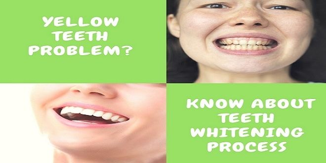 Yellow Teeth? 3 Important Aspects Know About Teeth Whitening  #teethwhitening     #teethwhiteningSydney
