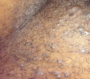 Vaginal Ingrown Hair Bumps Www Healtreatcure Org