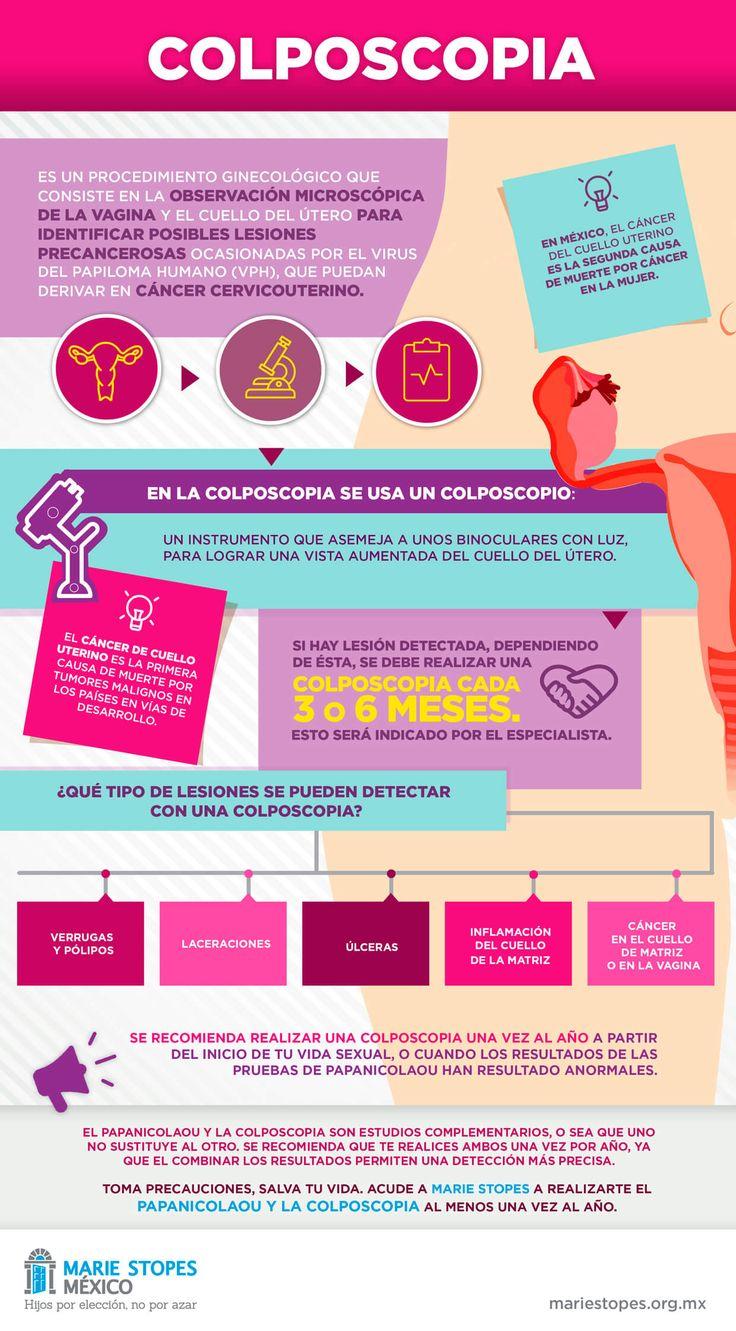 Materiales informativos y de prevención para tu vida sexual | Marie Stopes clínica especializada en Interrupción Legal del Embarazo (ILE) en México