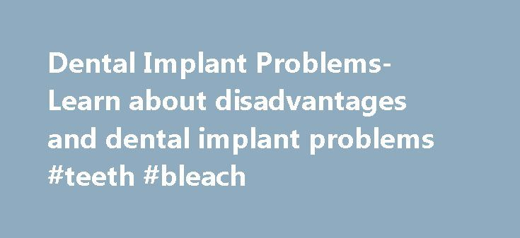 Dental Implant Problems- Learn about disadvantages and dental implant problems #teeth #bleach  #dental implants problems # Potential Dent  http://reviewscircle.com/health-fitness/dental-health/natural-teeth-whitening