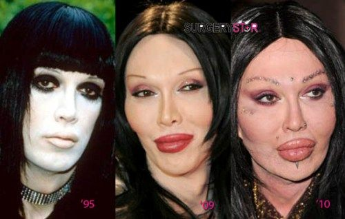 Bad Plastic Surgery Of Pete Burns Before And After Bad