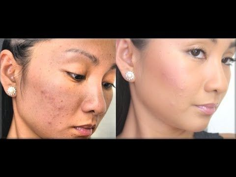 Full Coverage Foundation Routine for ACNE (Flawless Full Coverage Tutorial for Cystic Acne), via YouTube.