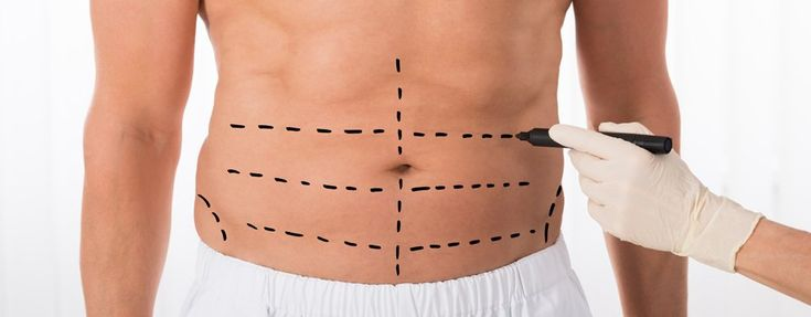 ➨Male Stomach liposuction in Ukraine is performed on lower and upper abdomen. …