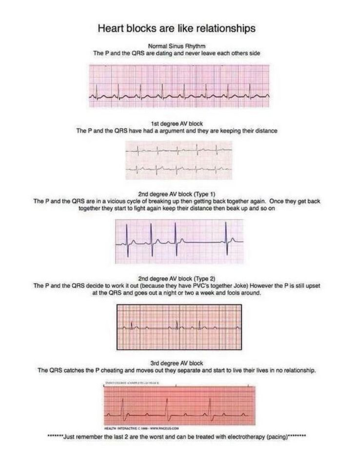 ekg rhythm strips of heart block prevail over