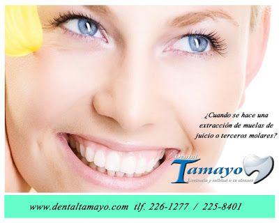 Muelas de juicio o terceros molares está en Dentista Tamayo
