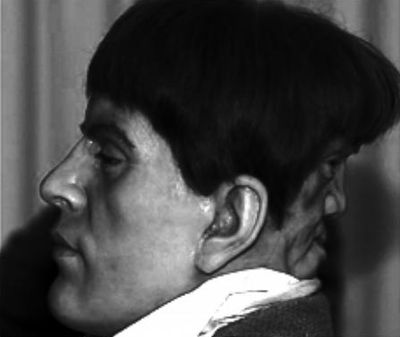 """Edward Mordrake was a 19th century English nobleman who had an extra face on the back of his head. According to the story, the extra face could neither eat nor speak, but it could laugh and cry. Edward begged doctors to have his 'devil twin' removed, because, supposedly, it whispered horrible things to him at night, but no doctor would attempt it."" Voldemort?"
