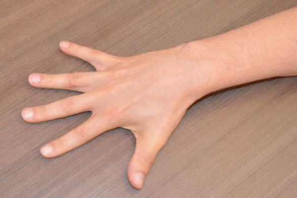 Dupuytren's Contracture: Hand Exercises - CNN