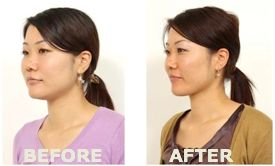 Face yoga ...forget Botox ..start face yoga and combat aging ...