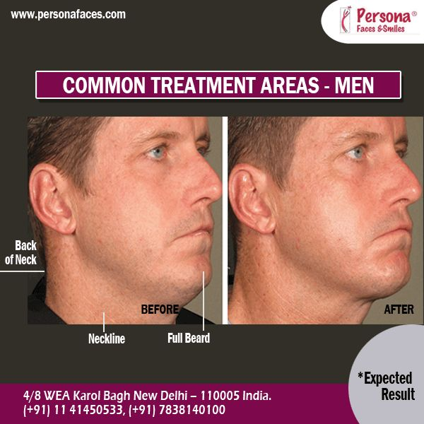 MALE #LASERFACIALHAIRREMOVAL: Skip the irritating effects of other hair removal types and choose laser hair removal. Choose the area to maintain perfect smoothness. Read More