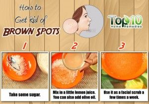 brown spots home remedy