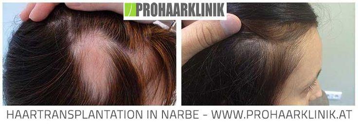 Haartransplantation Stuttgart