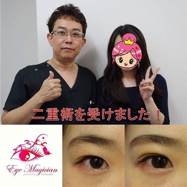 2016/11/27 09:16:20 eye_magician 症例:奈良県在住、22歳、会社員 ✨グランドライン法®(特殊埋没6点法)✨ 2年連続 日本美容外科学会で発表し大人気 アンケート調査で98%の満足度(2016年発表) 腫れない・バレない・戻らない 究極の埋没法二重術を目指して https://eye-magician.amebaownd.com グランドライン法®は1本の糸を特殊な方法で皮膚側に6点で固定し、糸玉を結膜側に埋め込みます。 そのため、術後の腫れが少なく、目を閉じても全く分からない、究極に長持ちする二重ラインになります 人気の秘密はこれですね スッピンでも綺麗な二重、手に入れませんか 0120-832-900…