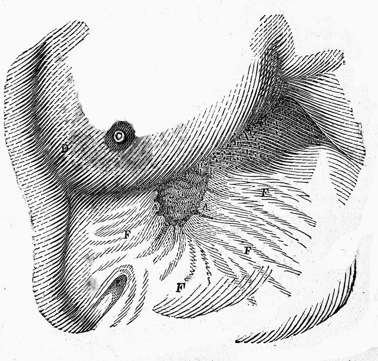 Physiology_of_digestion,_W._Beaumont,_1833_Wellcome_L0005178.jpg (1430×1366)