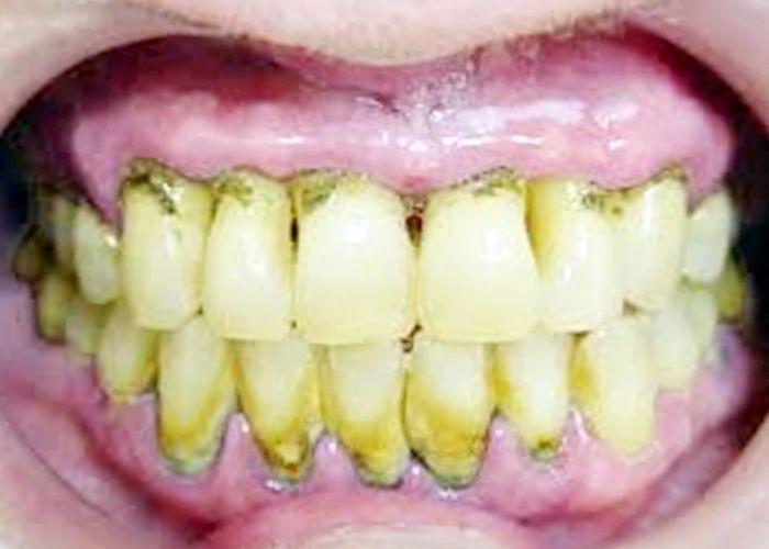 5 Penyebab Karang Gigi Dan Cara Menghilangkannya Bisikan Sehat Dan