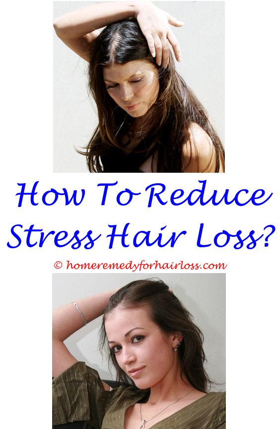 11 best Hypothyroidism Hair Loss images on Pinterest | Grow hair ...