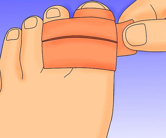How to Heal a Broken Toe: 10 Steps (with Pictures) - wikiHow
