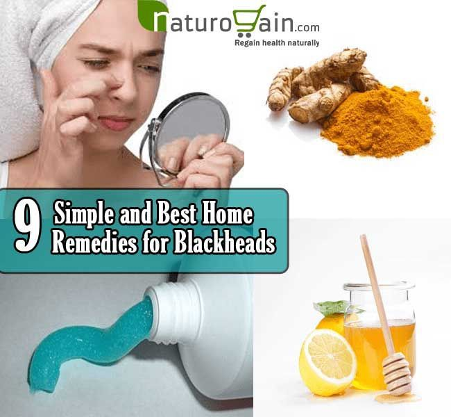 9 Simple and Best Home Remedies for Blackheads – #…