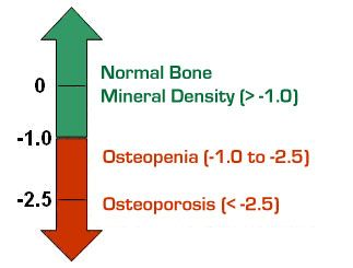 Osteopenia is a condition where bone mineral density is lower than normal. A precursor to osteoporosis. Diagnosis - June 2012