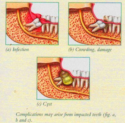 Effect of Wisdom Teeth on Orthodontic Treatment