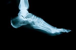 An unusual, hard bulge on the lower limbs may be a bone spur. The Martin Foot and Ankle doctors in York, PA, explain this uncomfortable bone growth.