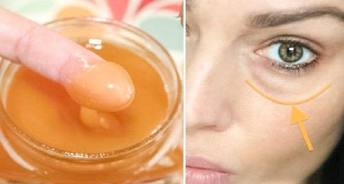 Ingrédients : ◾1 cuillère à soupe de miel bio ◾1 cuillère à café de concombre frais râpé ◾1 cuillère à café de pomme de terre crue fraichement râpée  Indications :  Mélangez soigneusement les trois ingrédients pour former une pâte. Ensuite, appliquez-la sur le contour des yeux après avoir nettoyé votre visage. Laissez le mélange agir pendant 20 minutes, puis rincez-le à l'eau froide.