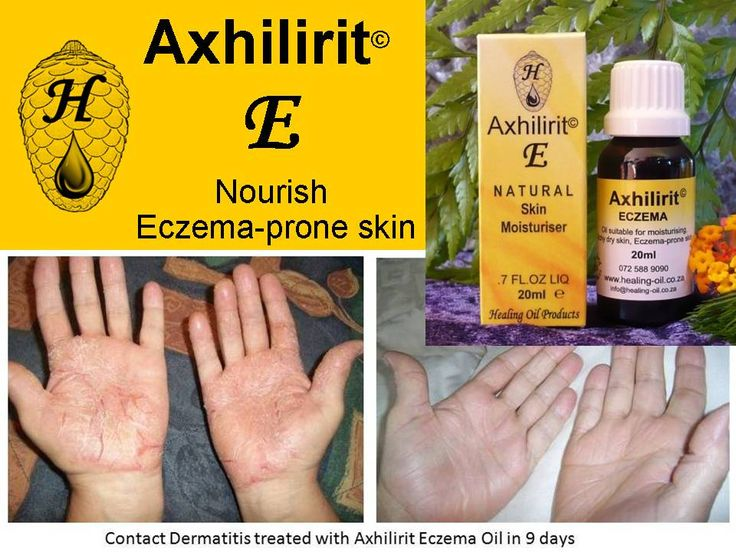 Axhilirit E Moisturizing products suitable for all types of ECZEMA prone skin. Exclusive Beauty Products that works! www.healing-oil.co.za