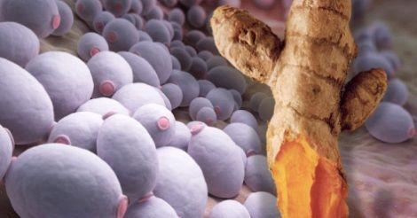 Lieviti e funghi nel nostro corpo possono contribuire non solo ad alimentare ma anche a provocare la formazione del cancro. Ecco come rimuoverli dal corpo