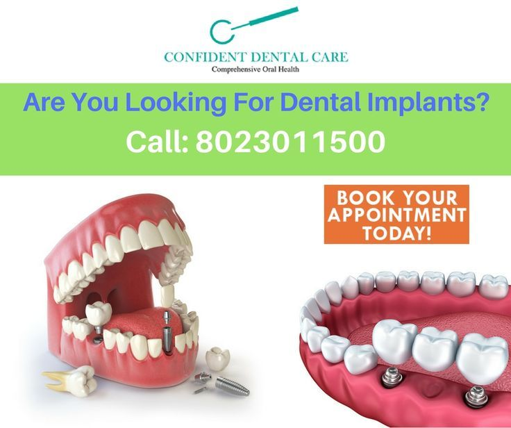 Missing tooth? Consult Best Dental implants clinic for all your dental problems...https://goo.gl/SAJ4Po #Dentalclinic #Missingtooth #Dentalimplants #DentalclinicinBangalore