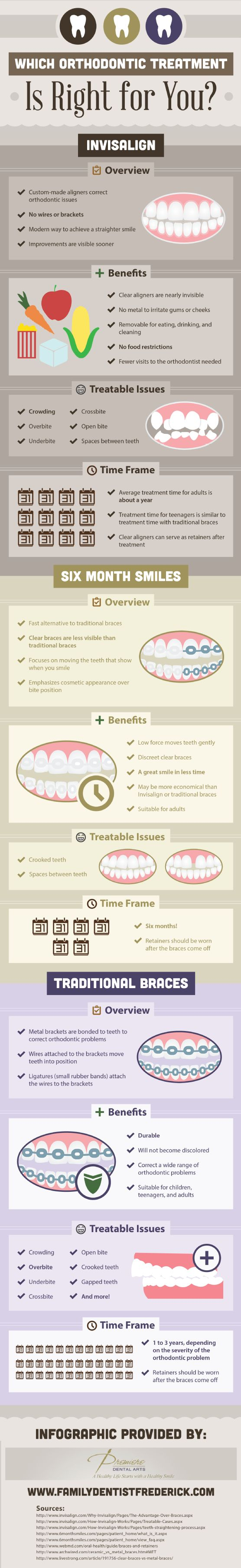 Invisalign, six month smiles, or traditional braces? #invisalign #smile #braces #dentist