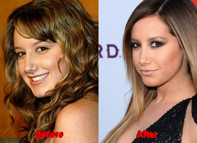 Ashely Tisdale Plastic Surgery before after nose job