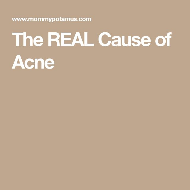 The REAL Cause of Acne