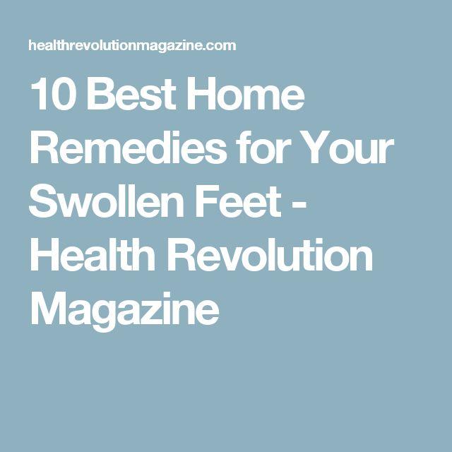 10 Best Home Remedies for Your Swollen Feet - Health Revolution Magazine