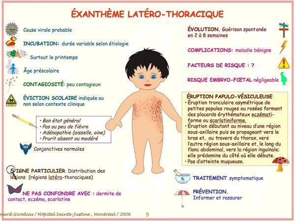 Exantheme latero-thoracique