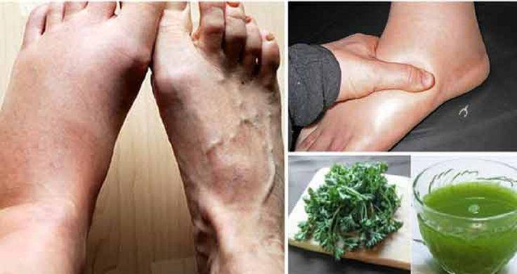 Gleznele şi picioarele umflate reprezintă o problemă frecventă, îndeosebi la persoanele în vârstă. Principala cauză a edemelor este acumularea de lichid în picioare, glezne şi tălpi. Picioarele se pot umfla din mai multe motive, cum ar fi căldura, afecţiunile vasculare, insuficienţa renală, insuficienţa cardiacă, sarcina, dereglările hormonale etc. Există mai multe tratamente naturale pentru picioarele umflate, unul din cele mai bune este pe bază de coji de pătrunjel, care, datorită…