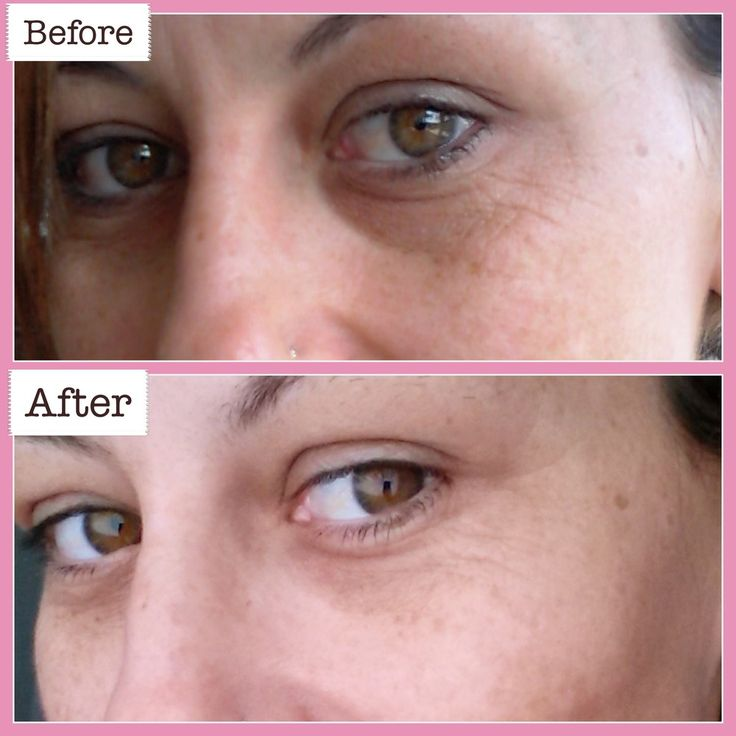 NEWA® Skin Rejuvenation System Product Trial with before & after photos with Heather James, Inspiring Mums® age 40 :)