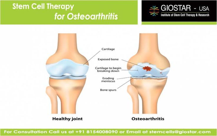 #Stem #Cell #Therapy for #Osteoarthritis  Osteoarthritis is the progressive joint degenerative disease, primarily affecting a soft connective tissue known as the cartilages. It is mostly known to be the disease of middle-aged or elderly people. Although, it can damage or affect any parts of the body; joints of the hands, knees, hips and spine are commonly affected.  Know More Visit: http://www.giostar.com/ Email: stemcells@giostar.com