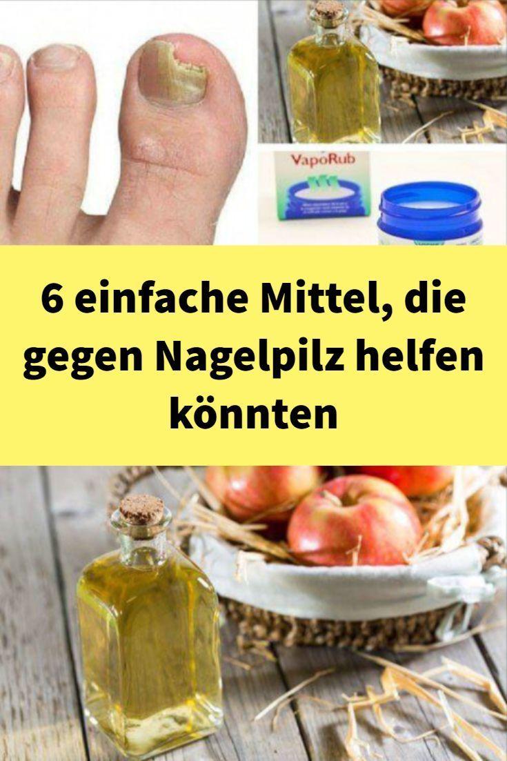 6 einfache Mittel, die gegen Nagelpilz helfen könnten  – Nagelpilz Hausmittel -… – Nagelpil…