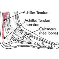 Achilles Pain, Poor Glute Control Linked http://www.runnersworld.com/newswire/achilles-pain-poor-glute-control-linked
