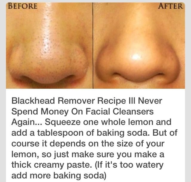 how to clear up blackheads on nose