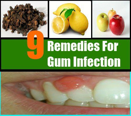 See more remedies at: whiter-teeth.netmd.in  Tooth Infection Tooth Infection Diabetes How To Get White Teeth   #Tooth Infection
