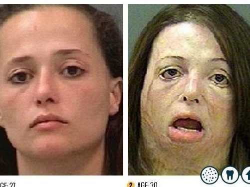 This New 'Faces Of Meth' Ad Is Utterly Harrowing...WHOA!!!!